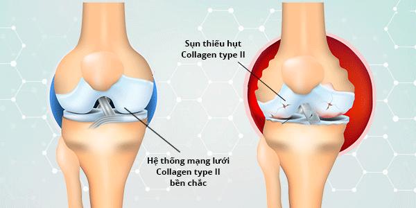 Collagen-co-giup-xuong-khop-chac-khoe
